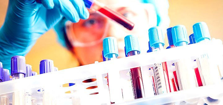 Комплексные анализы в сети медицинских лабораторий «Новая диагностика»