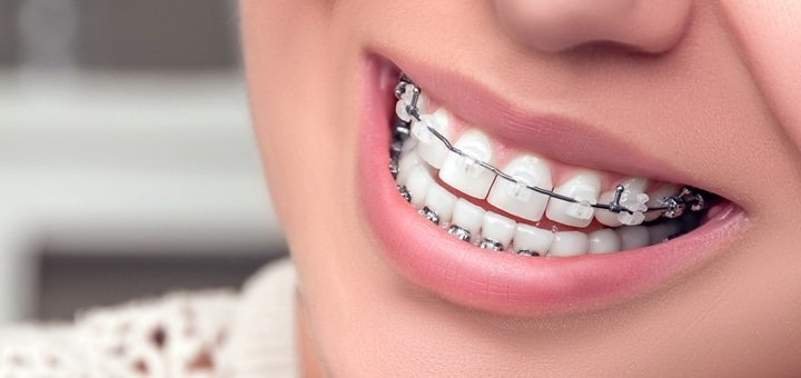 Скидка до 51% на установку брекет-системы в стоматологической клинике «Kristaly Dental»
