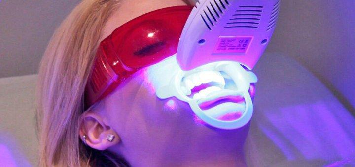 Профессиональное фотоотбеливание зубов в стоматологии Алексея Драбинки