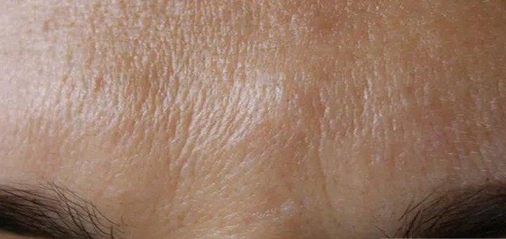Инъекции Botox или Dysport в клинике «New Medical»