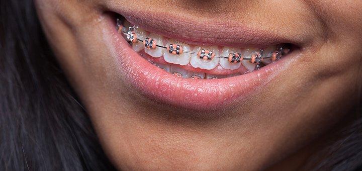 Скидка до 66% на установку брекет-системы в стоматологическом кабинете