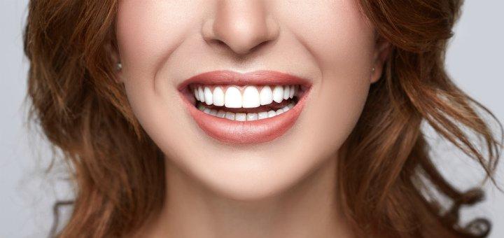 Отбеливание, чистка зубов и Air Flow с глубоким фторированием в «Rocketsmile»