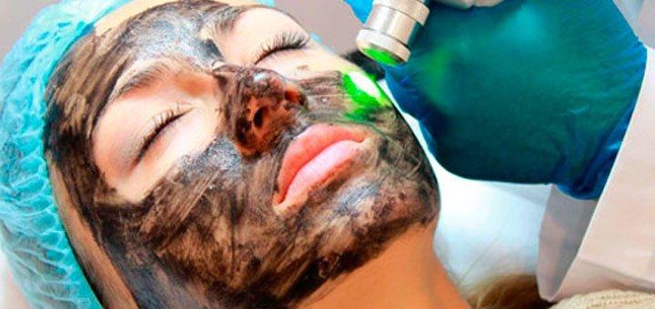 До 3 сеансов лазерного карбонового пилинга лица, декольте или спины от Елены Бороденко