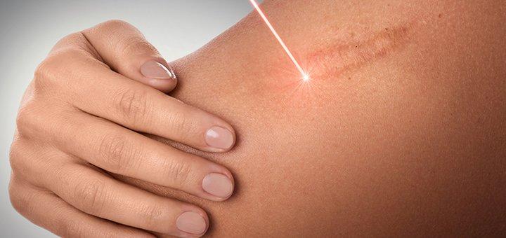 Скидка 30% на удаление шрамов лазером в клинике «Мед Сити»