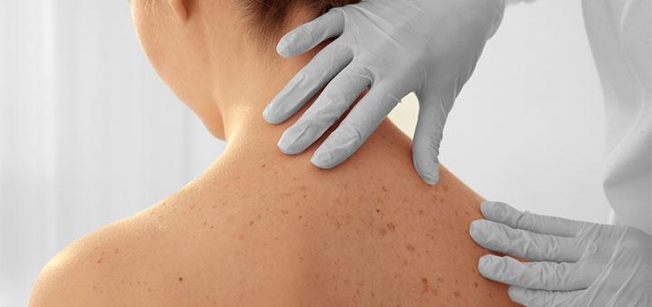 Удаление лазером до 10 кожных новообразований в медицинском центре «Гиппократ»