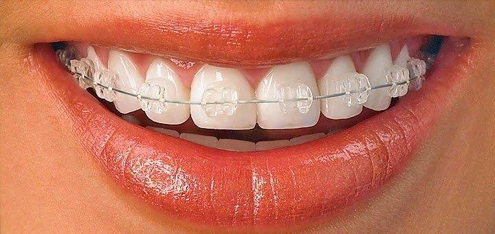 Скидка до 42% на установку брекет-системы в стоматологической клинике «Аби Дент»