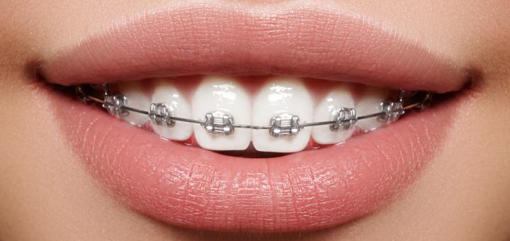 Скидка до 50% на установку брекет-системы в стоматологии на Владимира Мономаха