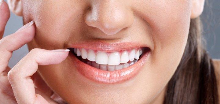 """Ультразвуковая чистка зубов в стоматологической клинике """"Витадент"""" от 99 грн.!"""