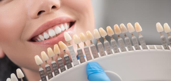 Комплексная ультразвуковая чистка зубов «EMS Швейцария» в сети клиник «Giorno Dentale»
