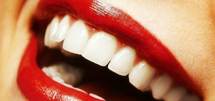 Скидка 48% на профессиональное лазерное отбеливание зубов «Magic Smile» в студии «White Bar»