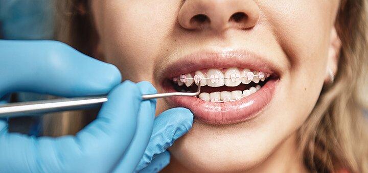 Скидка до 44% на установку брекет-систем в стоматологическом центре «Dentopolis»