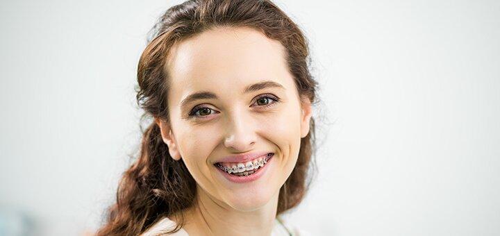 Скидка до 44% на установку брекет-систем в стоматологическом центре «Авиценна»