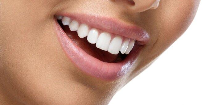 Знижка до 62% на відбілювання зубів Opalescence Boost з фторуванням від лікаря Ірини Нікітіної