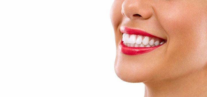 Скидка до 63% на лазерное отбеливание зубов «Magic Smile» в стоматологии на Кириловской