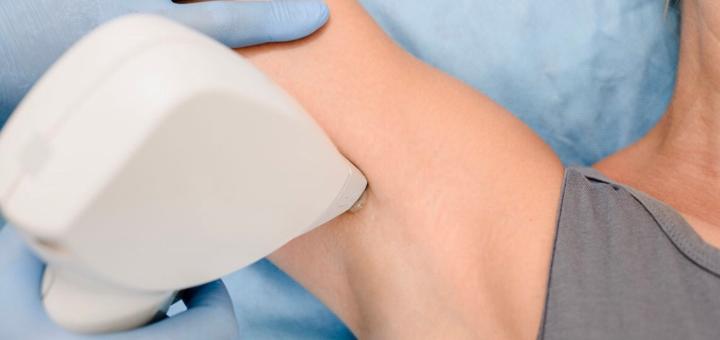 Скидка 65% на лазерную эпиляцию в косметологии «Медхилс»