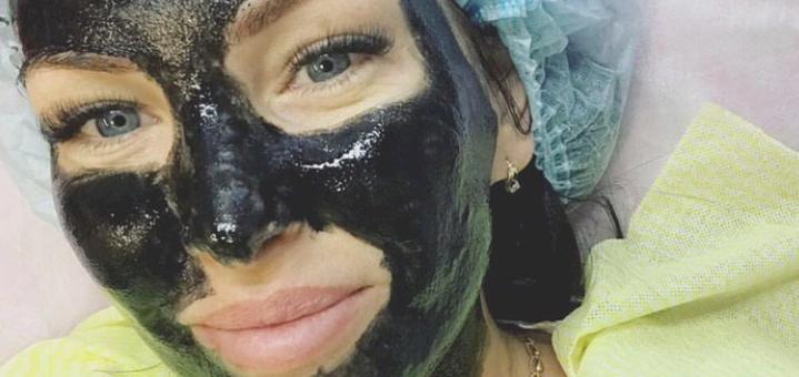 До 7 сеансов карбокситерапии лица от косметолога Оксаны Костецкой