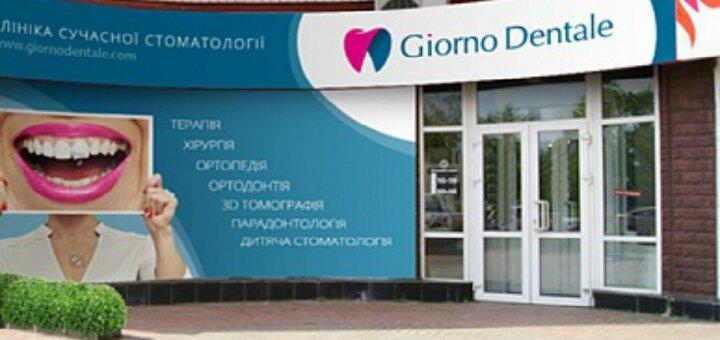Лечение кариеса с установкой фотополимерной пломбы в стоматологической клинике «Giorno Dentale»