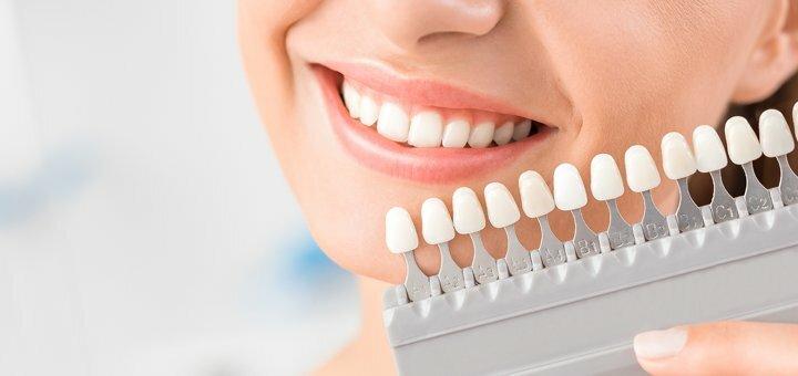 Скидка до 54% на косметическое отбеливание зубов «Shine Smile» в студии «Smile Bar»