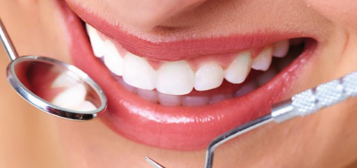 Скидка 50% на отбеливание зубов системой «Beyond» в стоматологии «Уют Clinic»