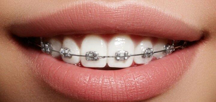 Скидка 56% на установку металлической брекет-системы на две челюсти от клиники «Доктор Мила»