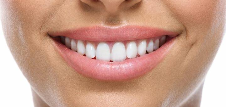 Скидка до 61% на лазерное отбеливание зубов с фторированием в центре «Моя Клиника»