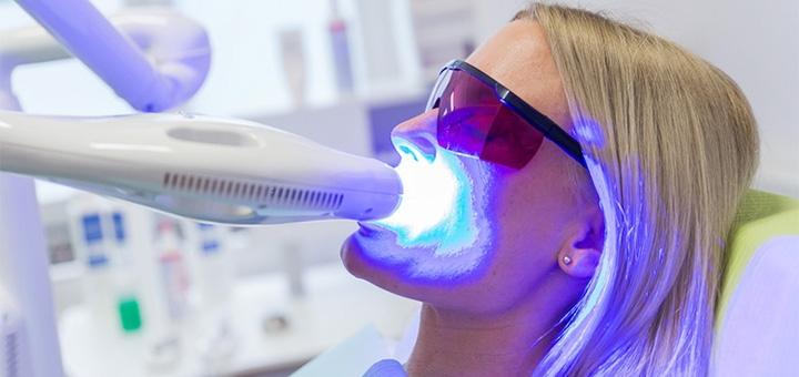 Скидка до 62% на лазерное отбеливание зубов в стоматологии «Beauty Studio Dnepr»