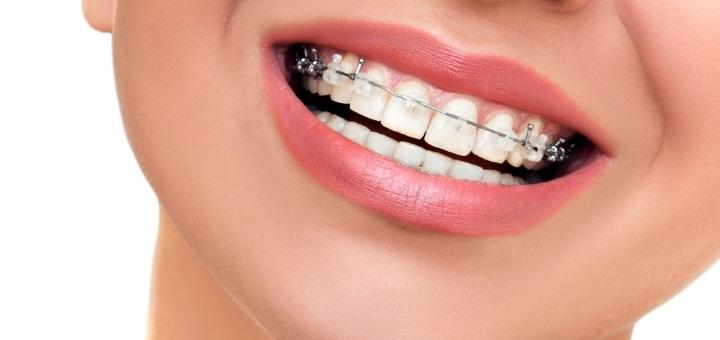 Знижка до 61% на встановлення брекет-системи в стоматологічній клініці «Стоматологія БМ»