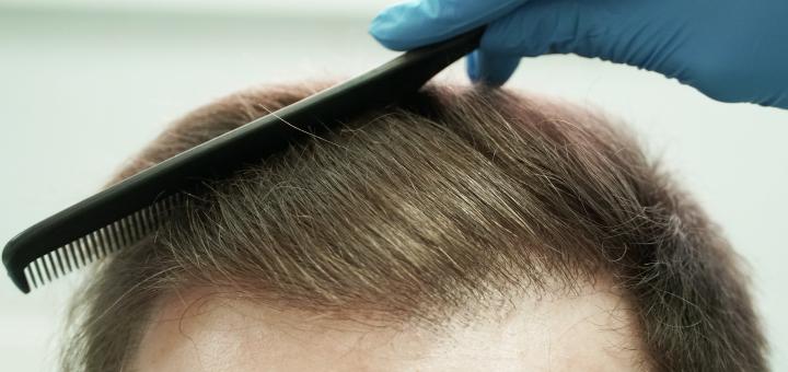 Скидка до 50% на пересадку волос методом FUE в клинике «RubenHair»