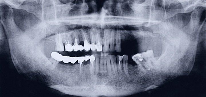 Панорамный рентгеновский снимок обеих челюстей и консультация стоматолога терапевта в клинике «Денталия»