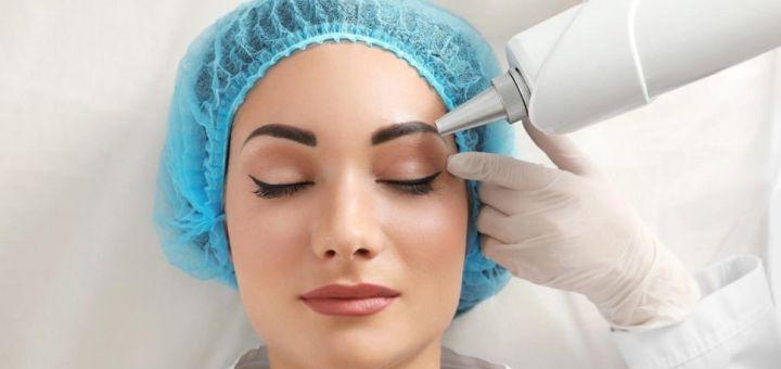 Скидка до 56% на лазерное удаление татуажа бровей в кабинете косметологии «Diode Lazer Dnepr»