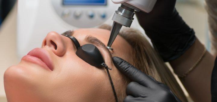 Лазерное удаление татуажа в центре лазерной косметологии «CosmoNova»