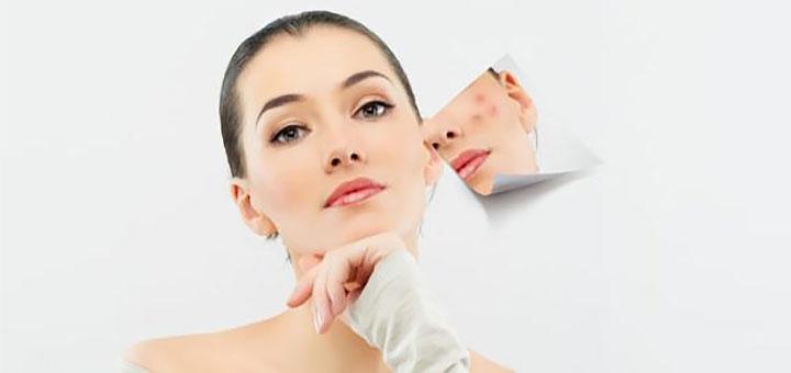 Скидка до 91% на чистку лица, лечение угревой сыпи и акне в «Молодей»
