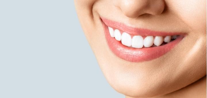 Скидка до 58% на лазерное отбеливание зубов «Magic Smile» в стоматологии «Дента Витал»