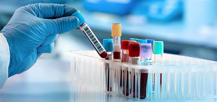 Скидка до 75% на анализы в сети медицинских лабораторий «IQLab»