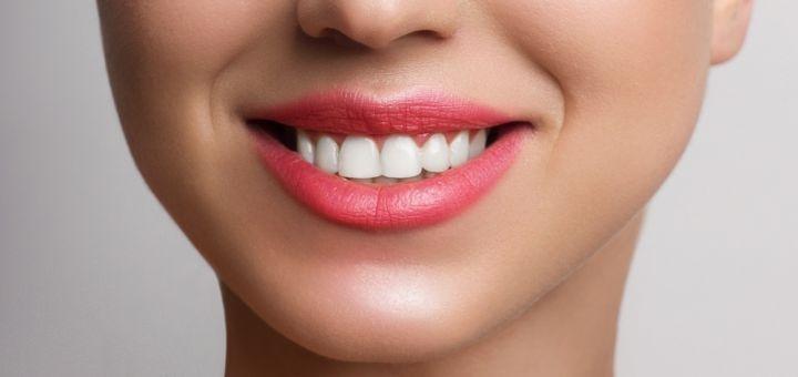 Скидка до 66% на профессиональное отбеливание зубов «Arde Lumine» в стоматологии «InStom»