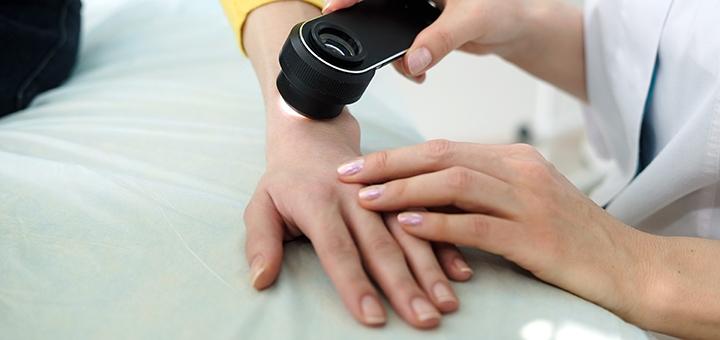 Обследование у дерматолога с дерматоскопией в медицинском центре «Колибри»