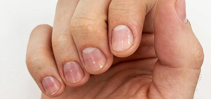 Аппаратный маникюр, педикюр и лечение вросшего ногтя в кабинете у подолога Елены Разгуляевой